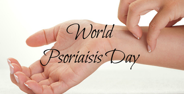 Best ways to treat psoriasis