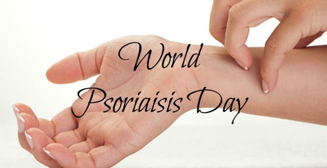 Best ways to treat psoriasis